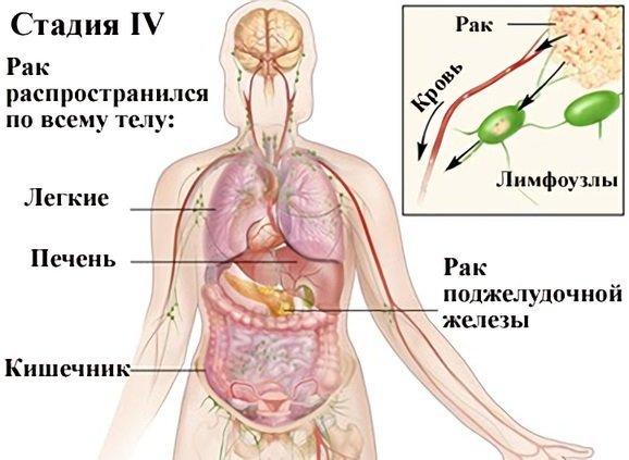 Рак поджелудочной железы: первые симптомы (проявления), фото