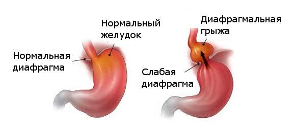 Ощущение кома в грудине причины