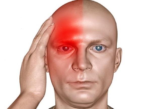 Болит правая сторона головы: причины и провоцирующие факторы