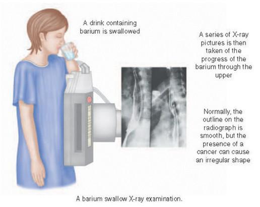 Рентген желудка с барием и подготовка к нему пациента: как делают и что показывает, последствия и вывод из организма контрастного вещества после рентгеноскопии