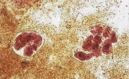 Крахмал в кале у ребенка и взрослого: внеклеточный и внутриклеточный