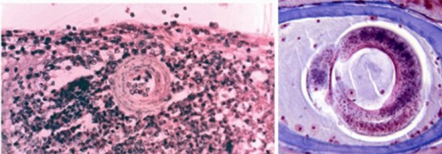 Токсокароз лечение у человека