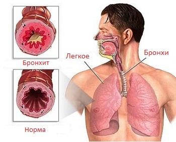 Боль в грудной клетке посередине и тяжело дышать: что это значит