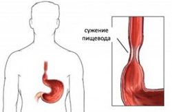 Отрыжка воздухом и боль в грудной клетке: причины и лечение