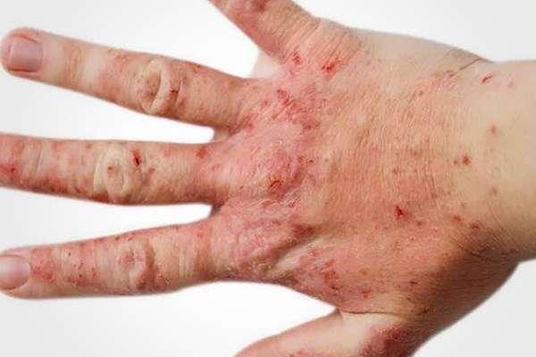 Заразен себорейный дерматит или нет и как передается?